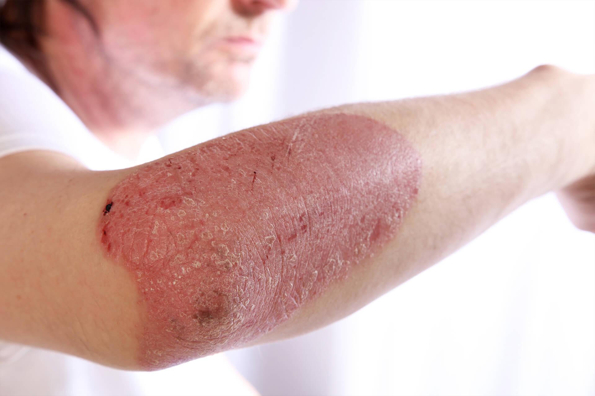 Dermatolog Danuta Nowicka_Łuszczyca