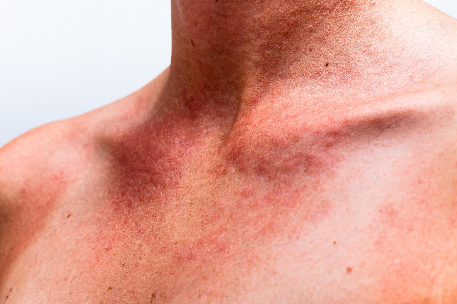 Dermatolog Danuta Nowicka_alergie skórne
