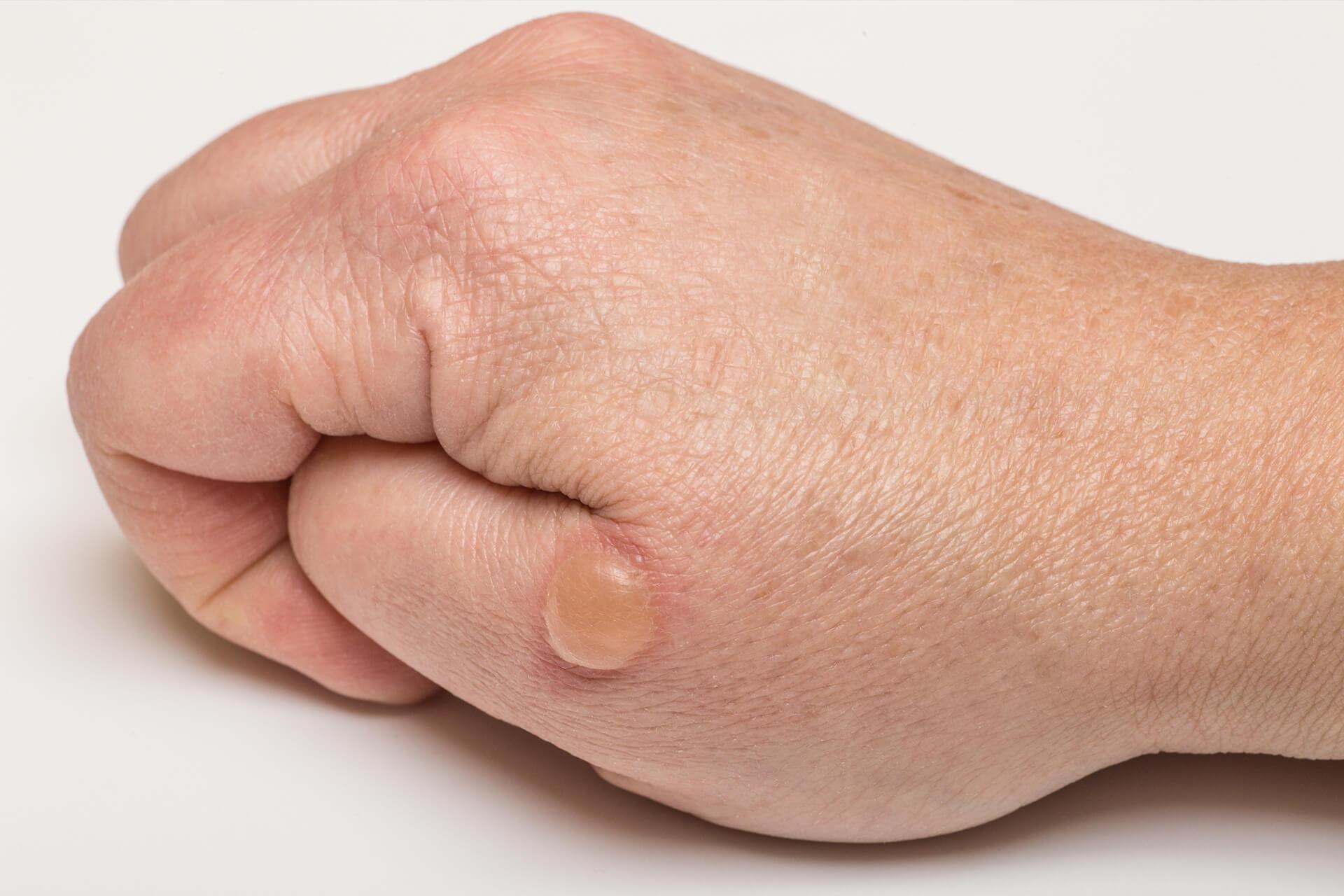 Dermatolog Danuta Nowicka_Choroby pęcherzowe
