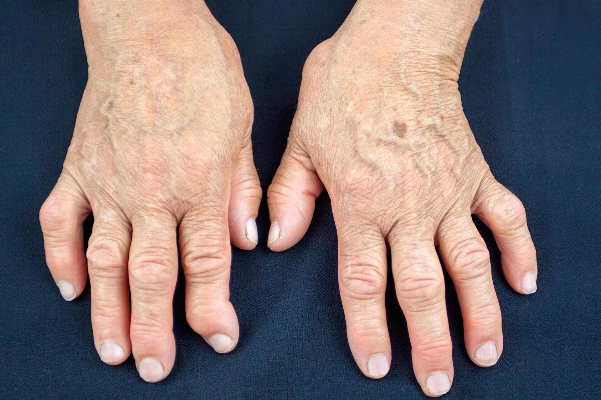 Dermatolog Danuta Nowicka_choroby tkanki łącznej